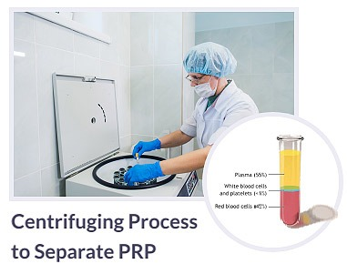 Centrifuging-Process to-Separate PRP