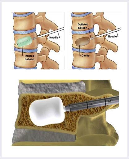 Kyphoplasty-image