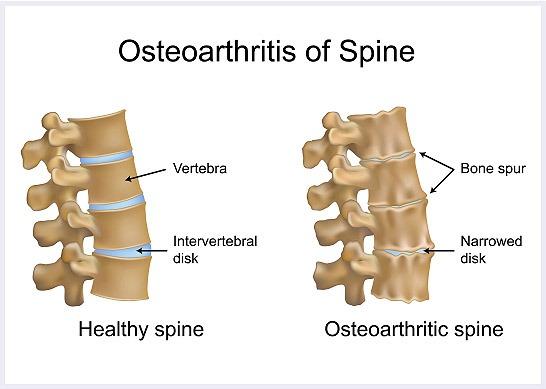 Osteoarthritis-of-spine