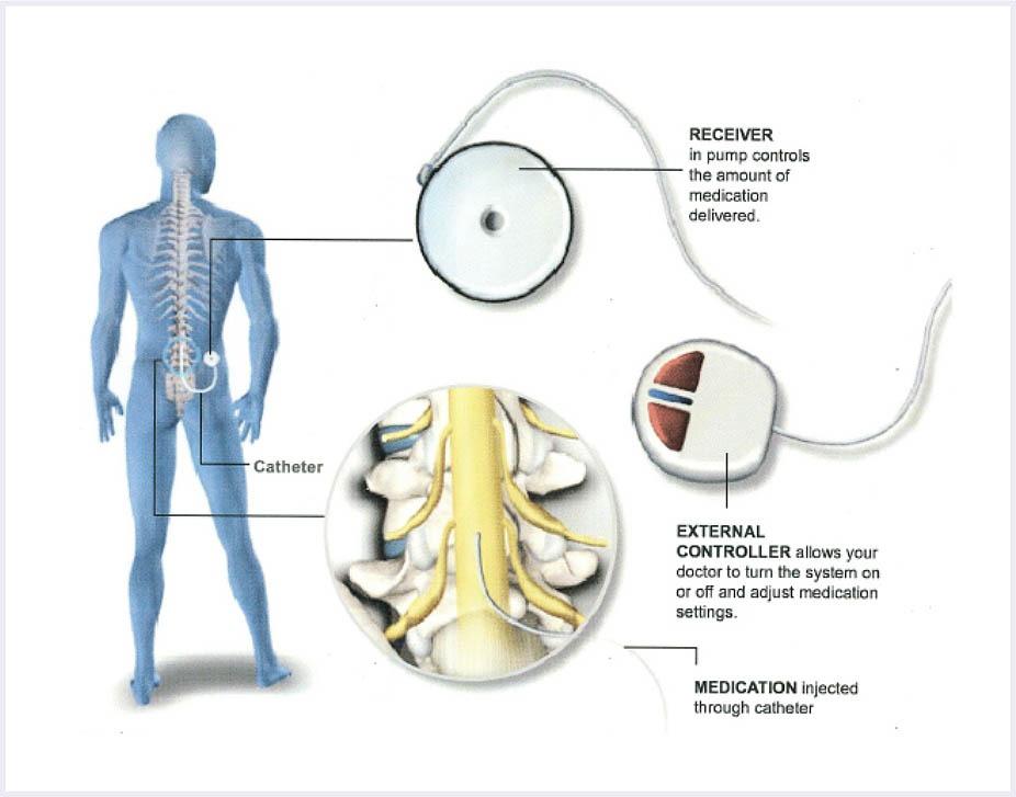 Peripheral-Nerve-Stimulator-image