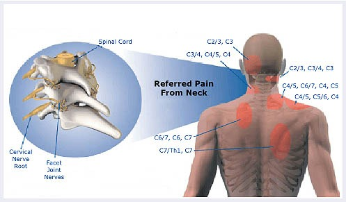 Referred-pain-image