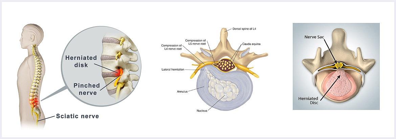 Regenerative-Medicine-Treatment-Options-for-Sciatica