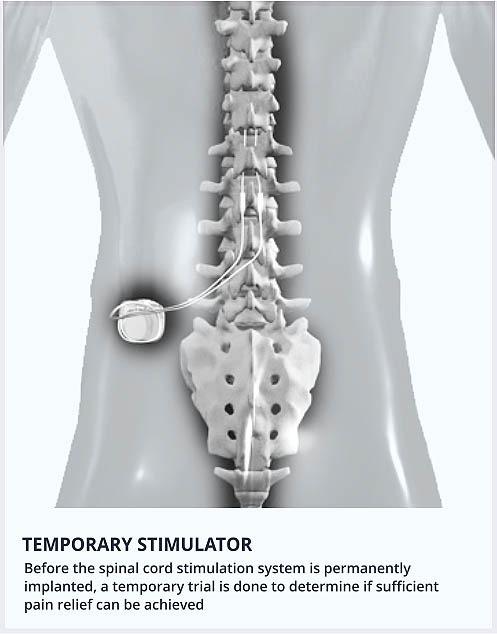 Temporary-stimulator-image