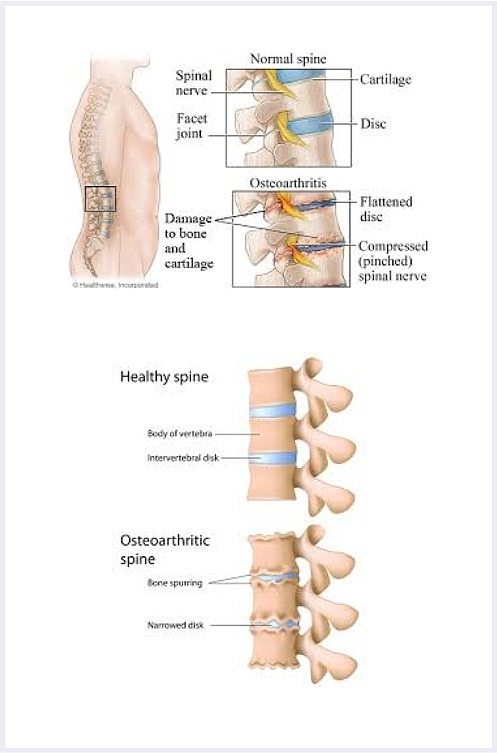 degenerative-joint-disease